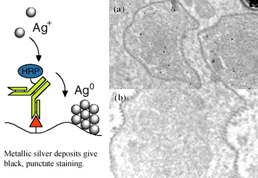 [Enzyme Metallography: Mechanism and Electron Microscopy] (68k)]
