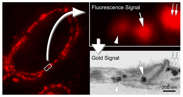 [Alexa Fluor 594 FluoroNanogold: correlative fluorescence and TEM labeling (63k)]