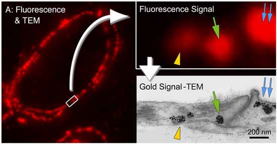 Correlative Light and Electron Microscopy with FluoroNanogold™