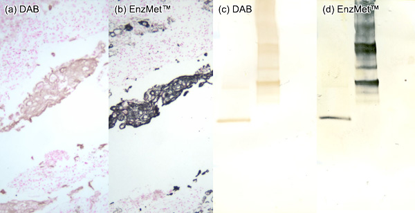 EnzMet™ for IHC and Western Blot: comparison with DAB